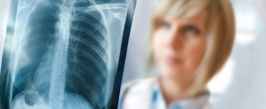 Mesothelioma X-Ray